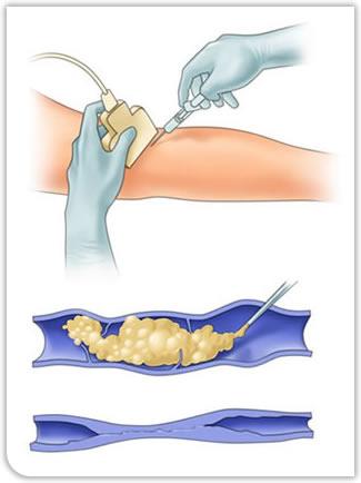 Operacija-krčne_žile_UGFS