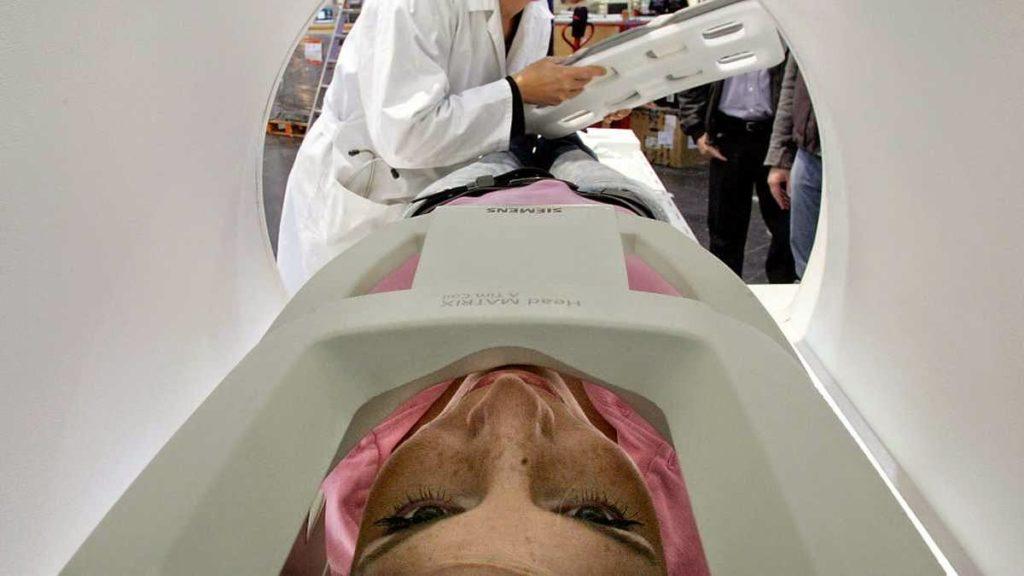 magnetna resonanca glave