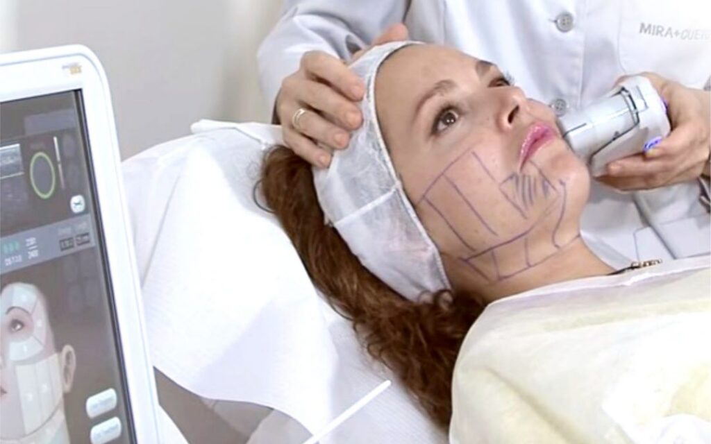 hifu terapija - poseg