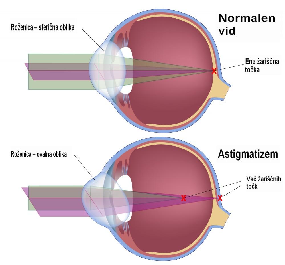 astigmatizem ali očesni cilinder prikaz