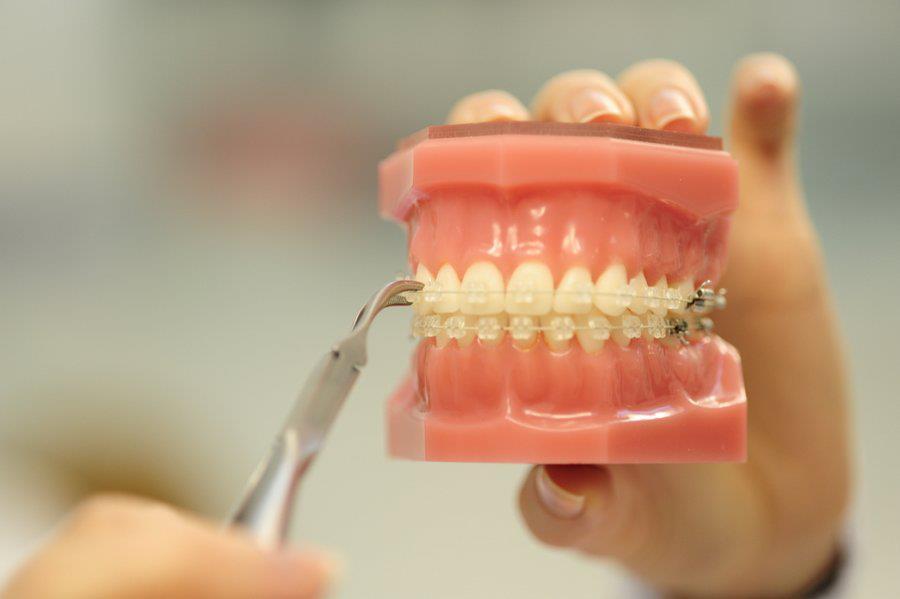 izbral je damon zobni aparat
