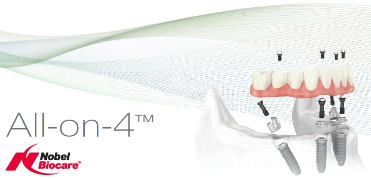 zobozdravstvo - implantologija