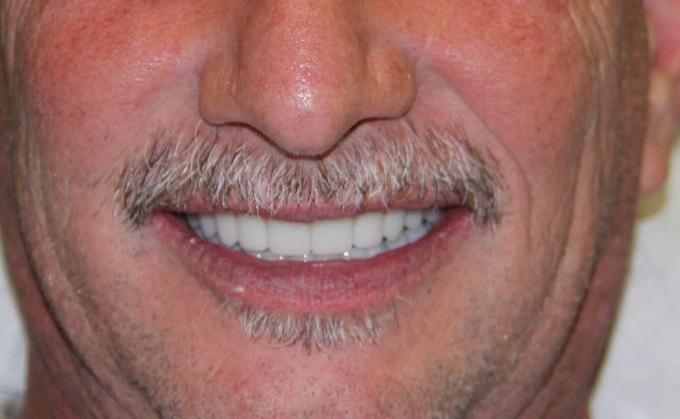 zobna proteza na implantatih pacient 1